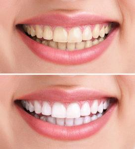 teeth whitening framingham ma
