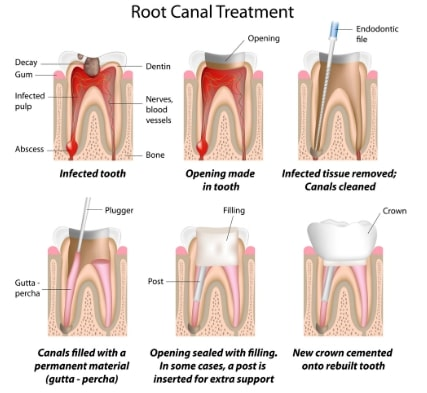 root canal treatment framingham ma