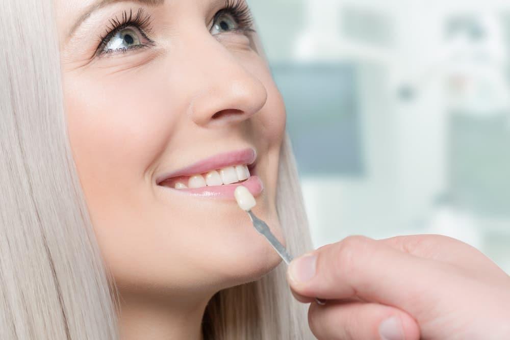 dental veneers framingham ma