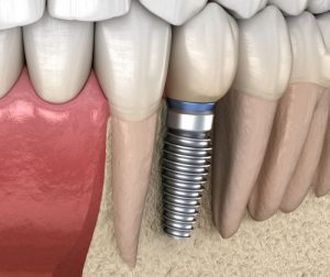 Dental implants Framingham ma